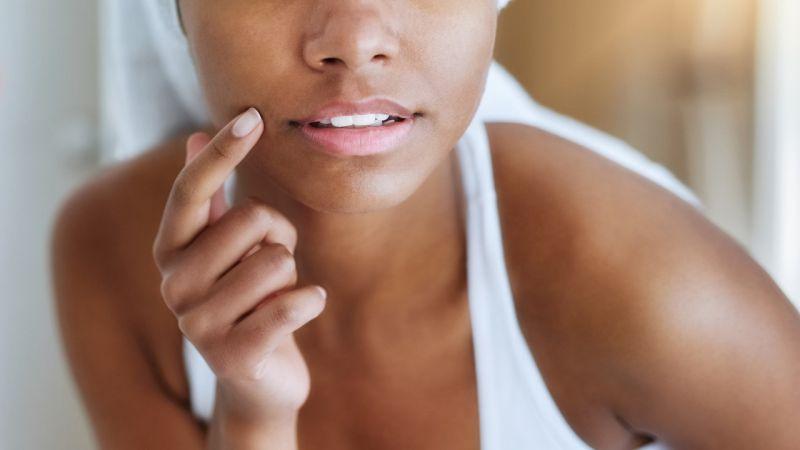 C'est quoi l'acné, comment on traite ?
