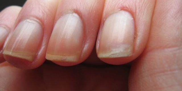 Soin naturel pour les ongles