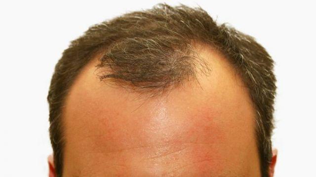 Que faire contre la chute des cheveux ?