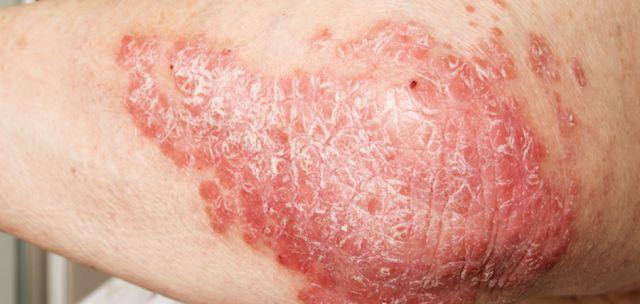 Qu'est ce que l'eczema ?